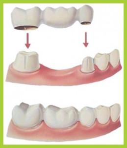 Bridge dental