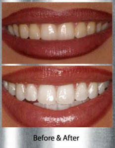 teeth-whitening-mclean-ba