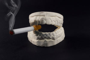 What Is the Impact of Smoking on Your Teeth?
