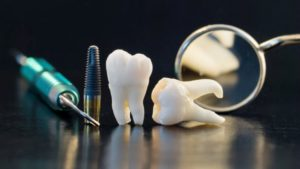 Who Should Have Their Wisdom Teeth Removed?
