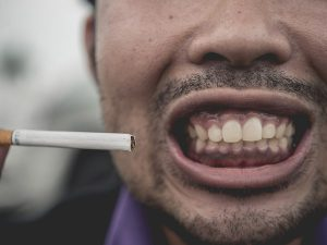 The Effects of Smoking on Your Dental Health